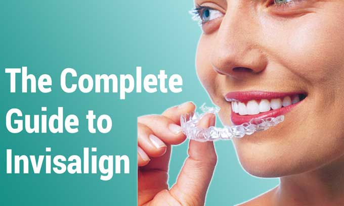 invisalign bristol treatment walkthrough